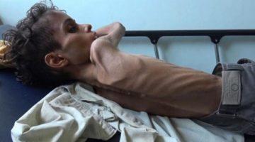 Niño Yemen hambruna