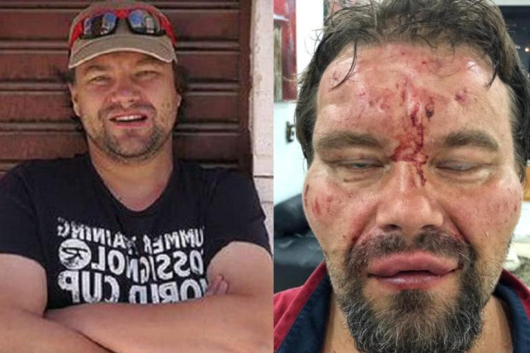 Agreden brutalmente a periodista polaco en Venezuela