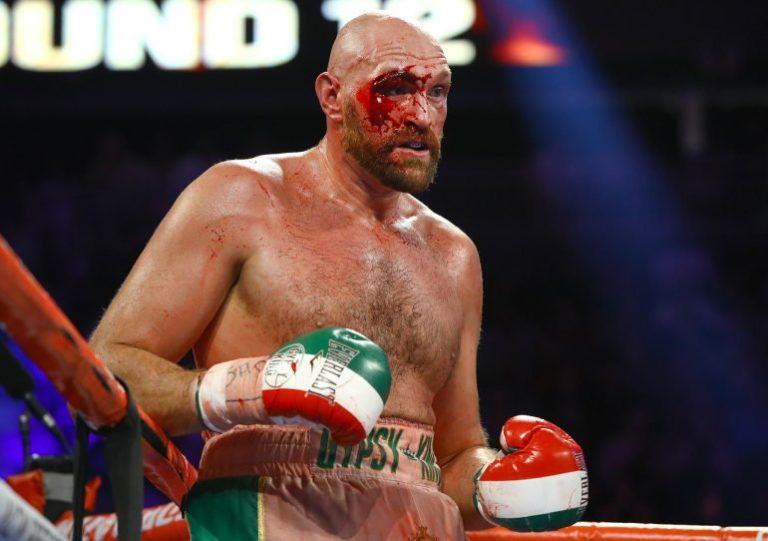 ¡Dura victoria! Tyson Fury recibió 47 puntos de sutura