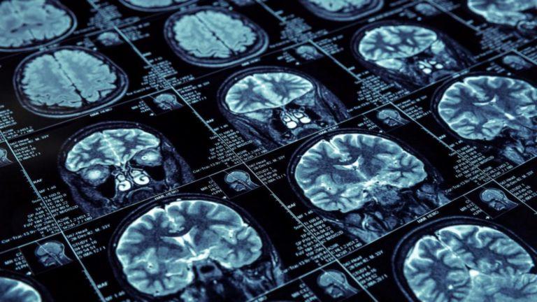 Nuevo medicamento podría revertir efectos del Alzheimer