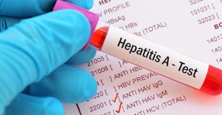 Repuntan en 800% los casos de Hepatitis A en New Jersey