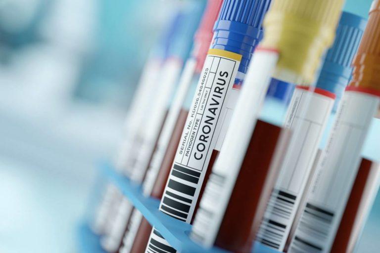 Supera COVID-19 y enfrenta trabas para donar plasma